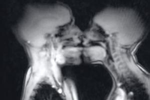 секс в апараті МРТ