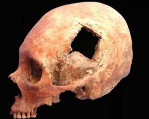 трепанація черепа