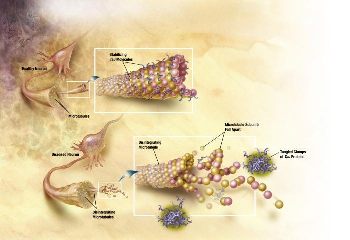 хвороба альцгеймера причини