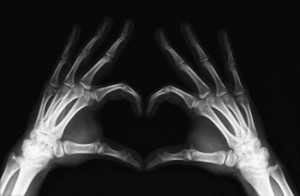 рентген кісток