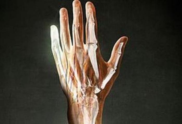 регенерація кінцівки людини