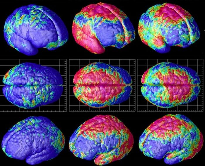 шизофренія мозок