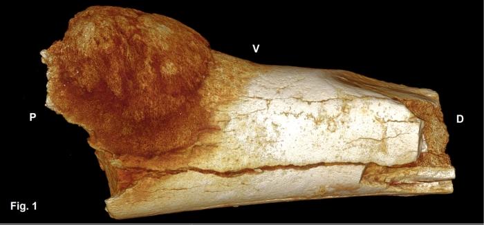 рак кістки древньої людини