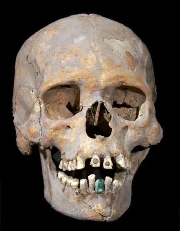 череп з інкрустованими зубами
