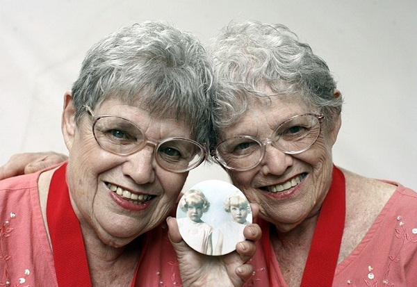 Близнюки живуть довше, ніж інші люди, - вчені