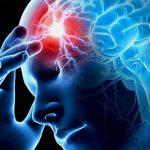 мозок інсульт