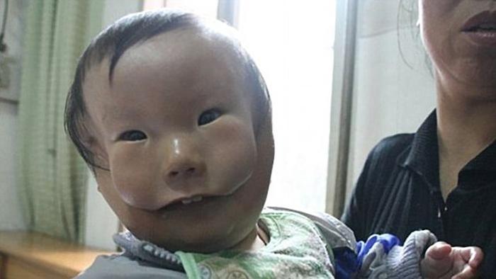 У Китаї живе хлопчик з маскою замість обличчя