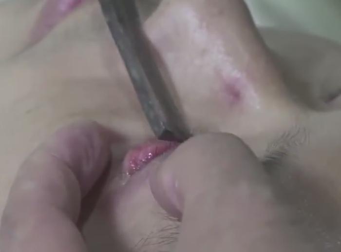 пацієнтам голять очі