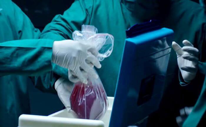 пересадка органів